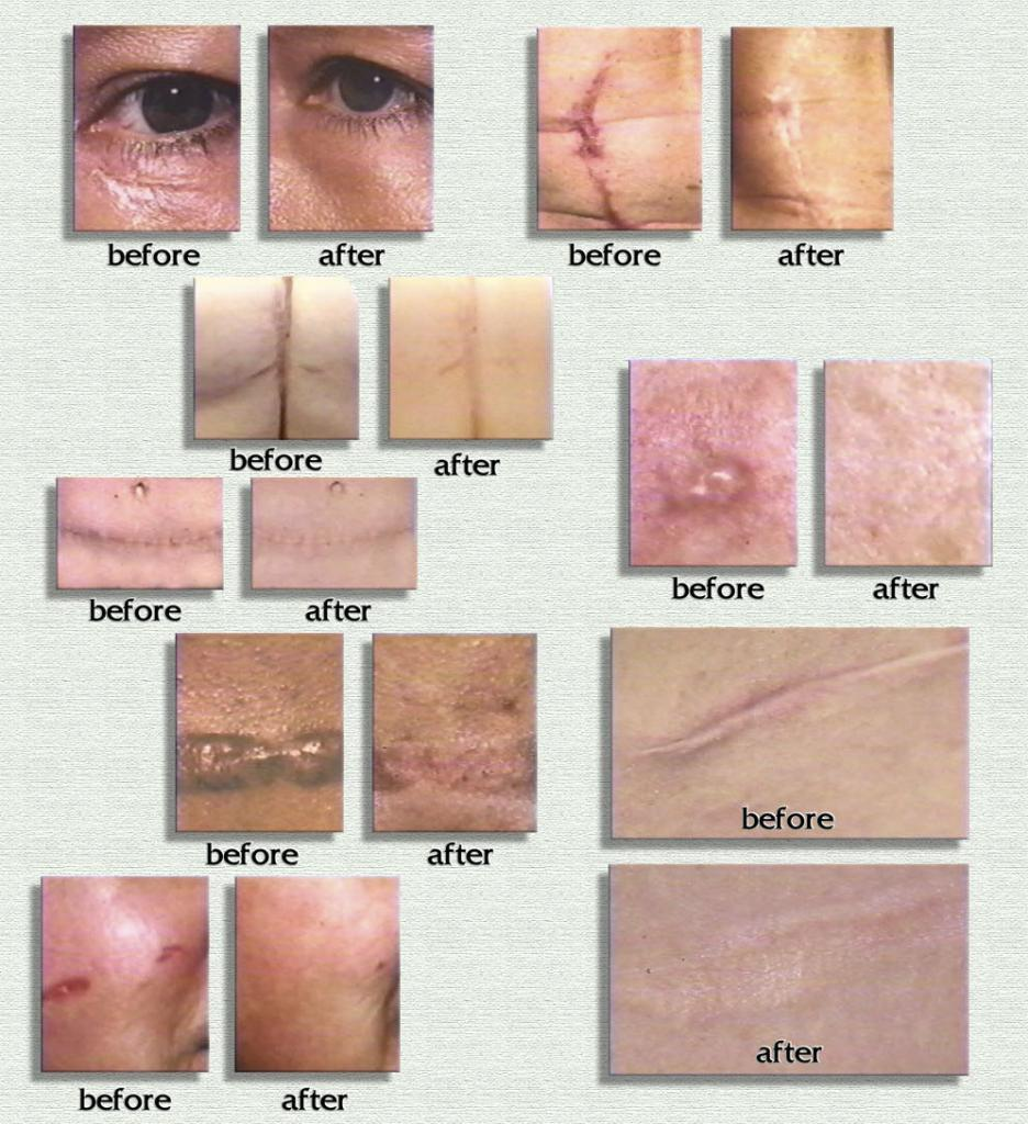 scar esthetique-4